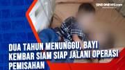 Dua Tahun Menunggu, Bayi Kembar Siam Siap Jalani Operasi Pemisahan