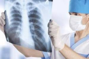 Kemenkes: 13 Orang Meninggal Setiap Jam Akibat Tuberkulosis