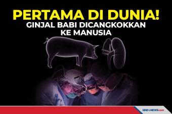 Pertama di Dunia! Ginjal Babi Berhasil Dicangkokkan ke Manusia
