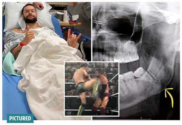Cedera Horor, Rahang Pegulat WWE Ini Hancur Dihajar Lawan