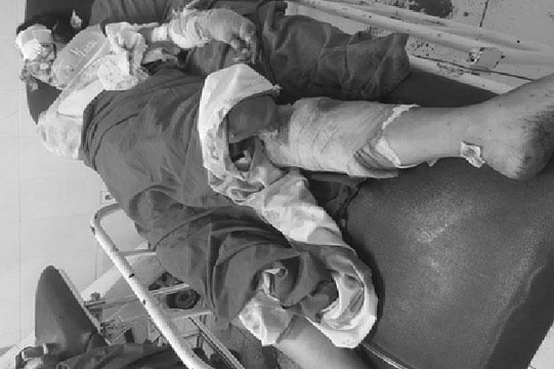 Korban Pembacokan Satu Keluarga di Panakkukang Jalani Operasi di RS Berbeda