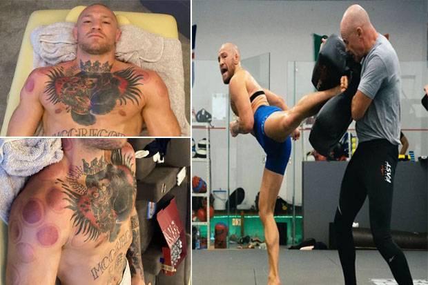 Obat Kuat Conor McGregor Bekam, Toh, Pantas Powernya Dahsyat!