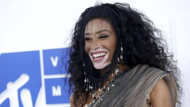Kisah Sukses Winnie Harlow, Kikis Stigma Penderita Vitiligo